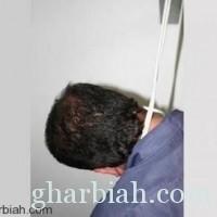 إنتحار عامل آسيوي  داخل مستشفى خاص بجدة